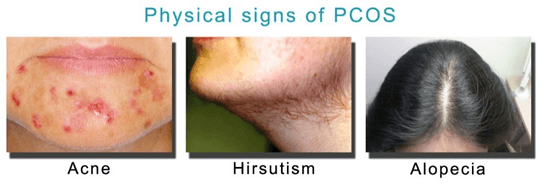 physical signs of PCOS