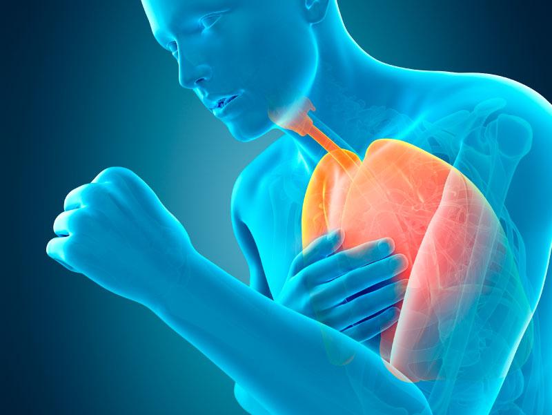 مرض الإنسداد الرئوي المزمن COPD