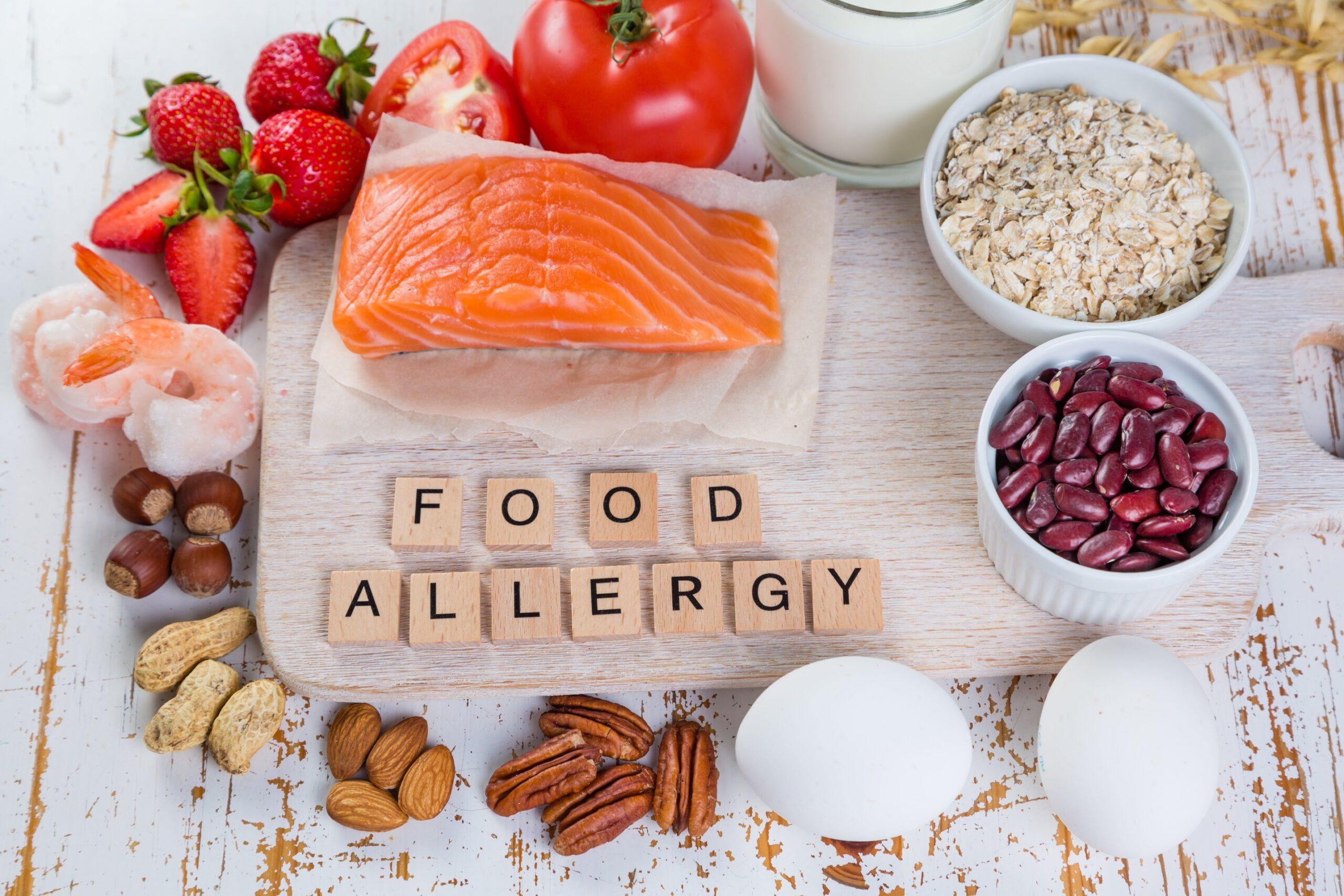 هل تعاني من حساسية الطعام؟